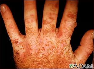 Porphyria cutanea tarda on the hands