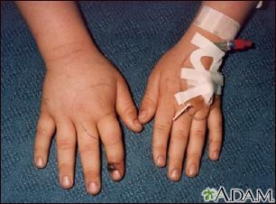 Snake bite on the finger