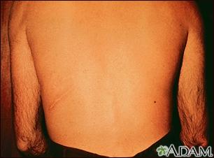 Strongyloidiasis,