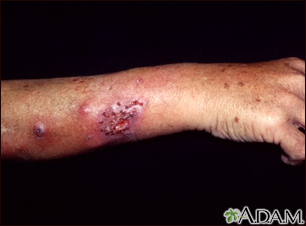 Sporotrichosis on the forearm
