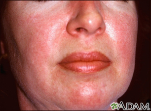 Dermatomyositis - heliotrope rash on the face