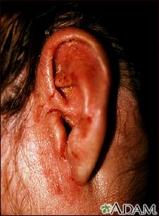 Tinea corporis - ear