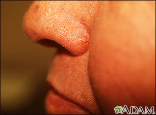 Basal cell carcinoma - nose
