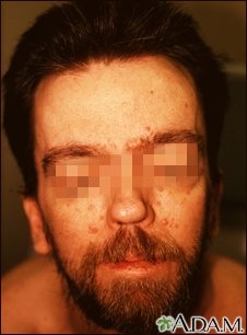 Basal cell nevus syndrome - face