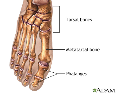 Bunion removal - Series