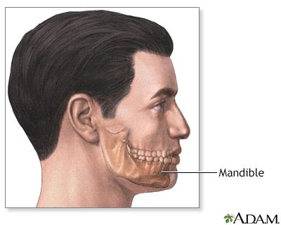 Chin augmentation  - series