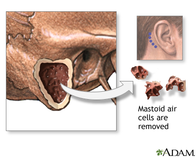 Mastoidectomy - Procedure