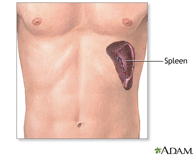 Spleen removal - series