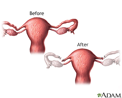 Before and after tubal ligation
