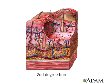 Second degree burn