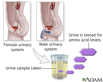 Aminoaciduria urine test