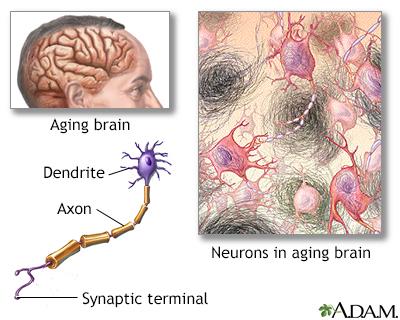 Aged nervous tissue