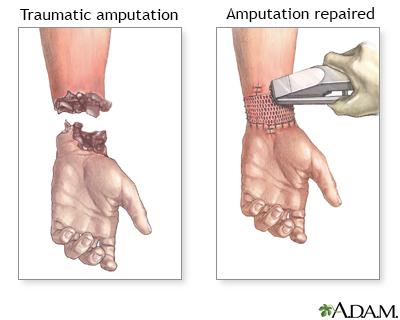 Amputation repair