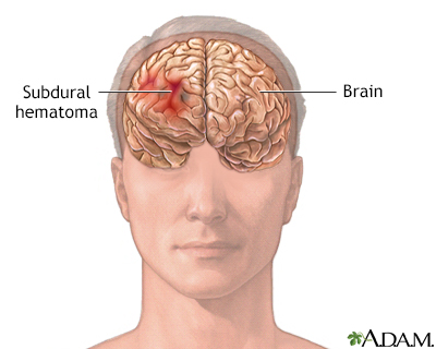 Subdural hematoma Information | Mount Sinai - New York