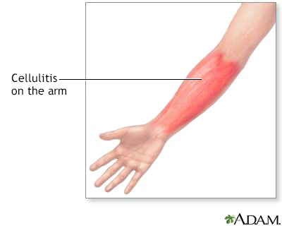 Cellulitis Information | Mount Sinai - New York