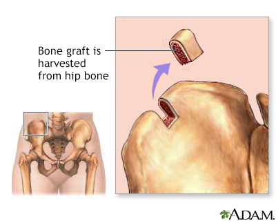 Bone graft harvest