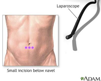 Incision for abdominal laparoscopy