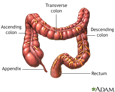 Large bowel resection - Series