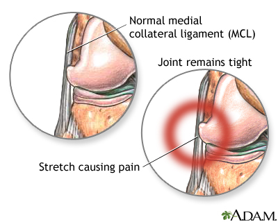 Lateral Collateral Ligament Pain Um St Joseph Medical Center