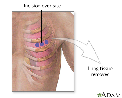 Incision for lung biopsy