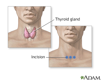 Incision for thyroid gland surgery