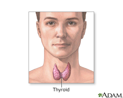 Goiter Simple Information Mount Sinai New York