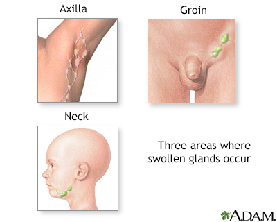 Swollen lymph nodes Information | Mount Sinai - New York