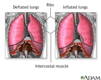 Breathing difficulty - lying down Information | Mount Sinai