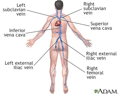 Deep vein thrombosis Information | Mount Sinai - New York