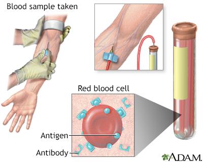 Antibody titer
