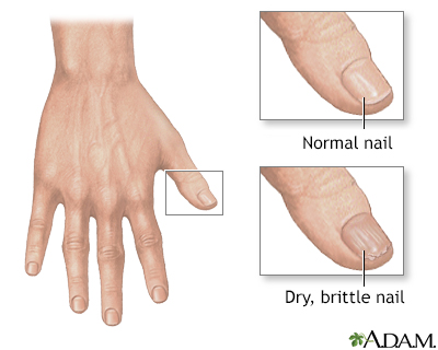 Nail Abnormalities Information Mount Sinai New York