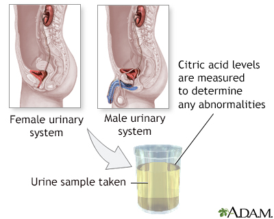 Citric acid urine test