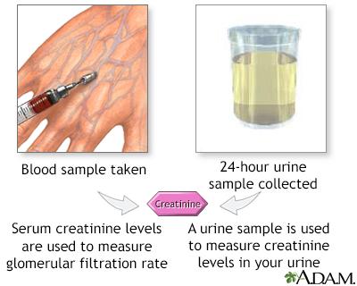 Creatinine tests
