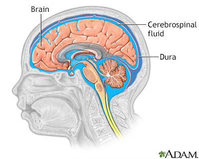 Cerebrospinal fluid leak