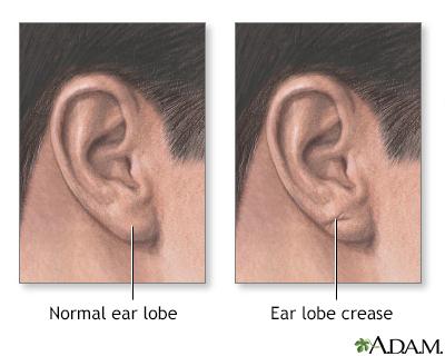 Ear lobe crease