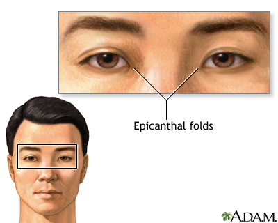 Epicanthal folds