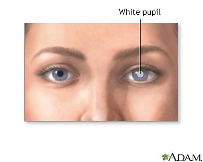 White pupil