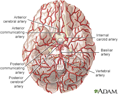 Arteries of the brain