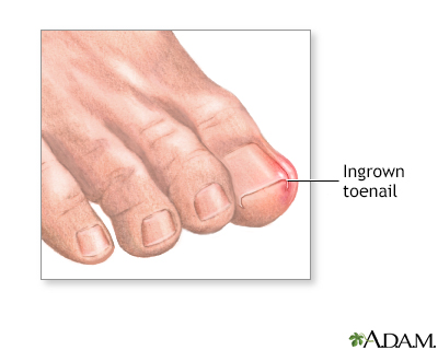 Ingrown toenail Information | Mount Sinai - New York