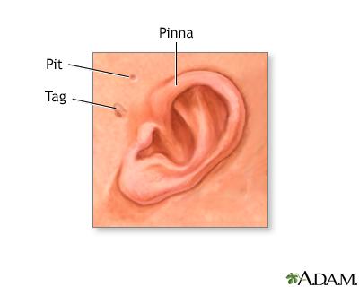 Ear tag Information | Mount Sinai - New York