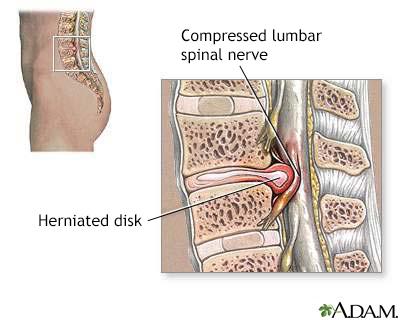 Herniated lumbar disk