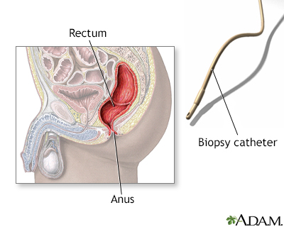 inside-the-rectum-and-anus