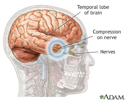 Brain hernia