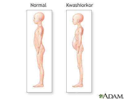 Kwashiorkor symptoms