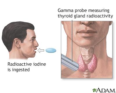 Thyroid uptake test