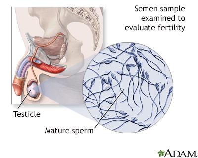 Semen analysis