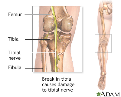 tibial nerve dysfunction information mount sinai new york Sacral Nerves Diagram tibial nerve dysfunction occurs when there is damage to the tibial nerve symptoms can include numbness, pain, tingling, and weakness of the knee or foot