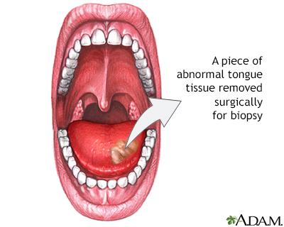 Tongue biopsy