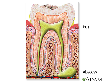 Tooth Abscess Information Mount Sinai New York