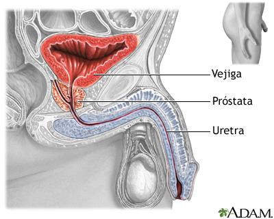 causa de muerte de próstata endurecida